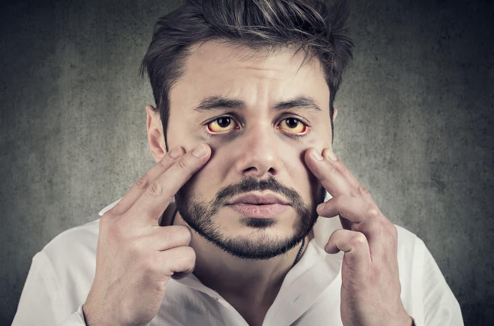 operasi kantung mata