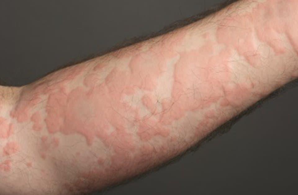 Alergi kulit biduran