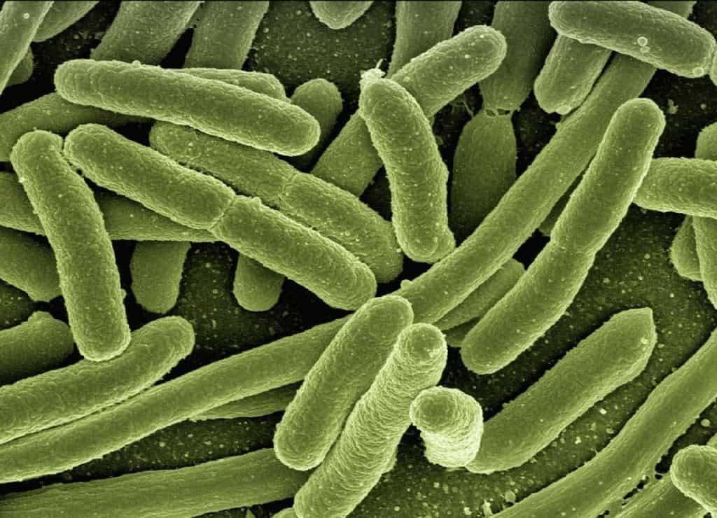 infeksi saluran kemih