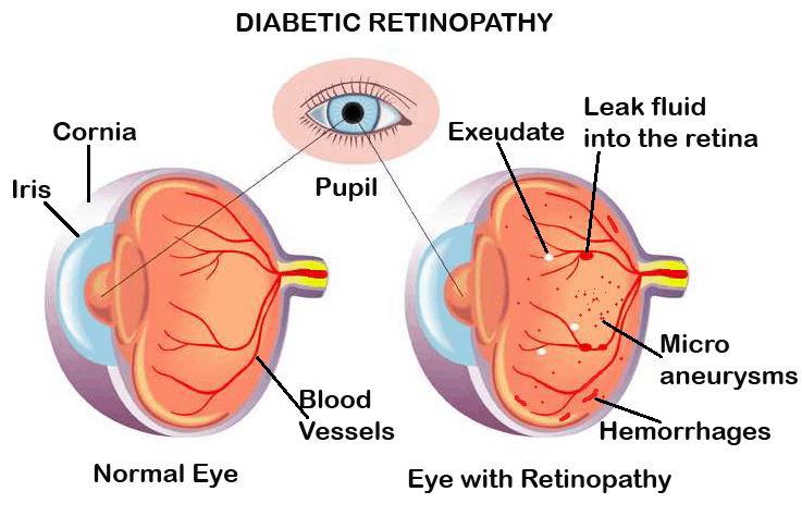 retinopati diabetik-ilustrasi
