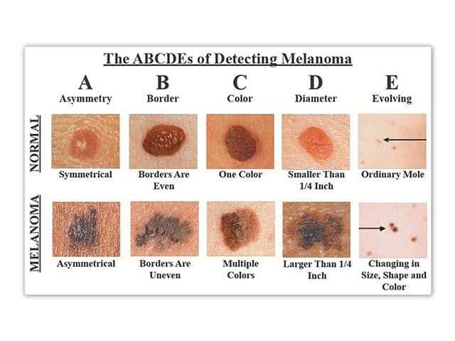 ciri-ciri kanker kulit