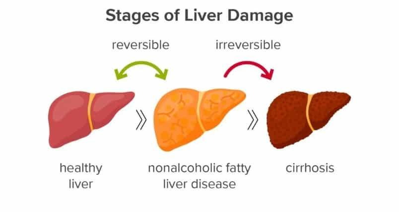 Jenis fatty liver adalah