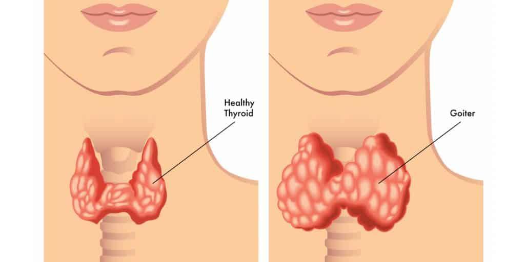 penyakit hipotiroidisme