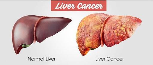penyakit kanker hati
