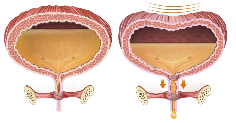 gejala penyakit chlamydia