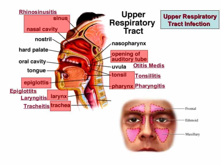 infeksi saluran pernapasan atas (ISPA)- ilustrasi