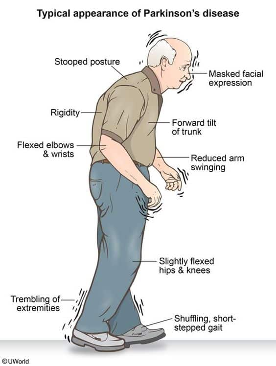 gejala awal parkinson
