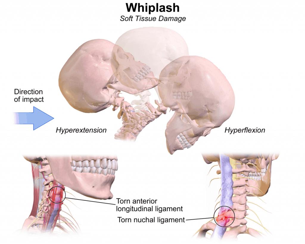 sindrom whiplash