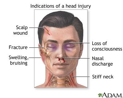 pertolongan pertama untuk cedera kepala