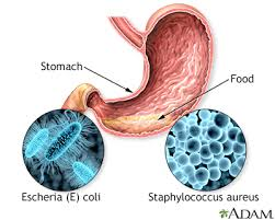 ciri-ciri keracunan makanan