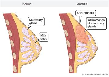 ciri-ciri mastitis payudara