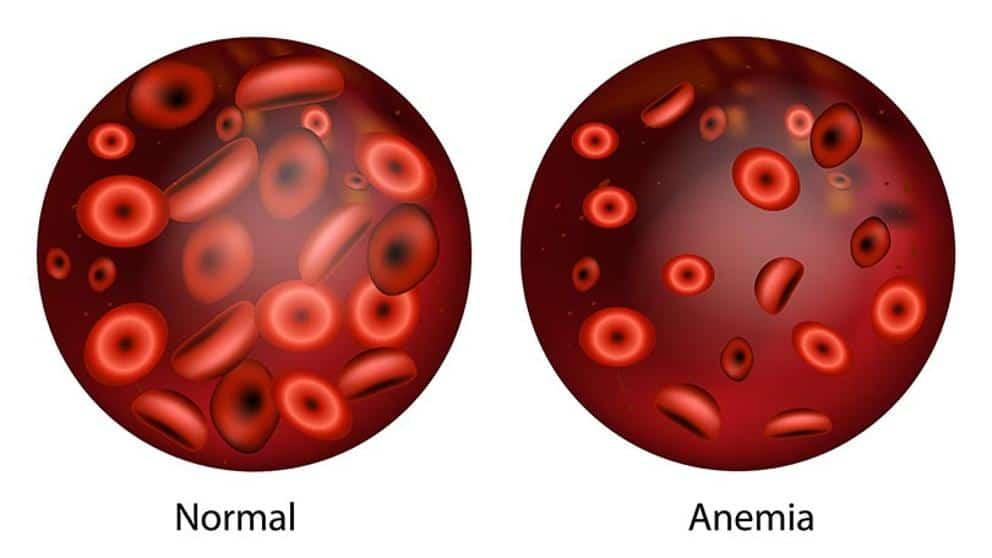 gejala anemia