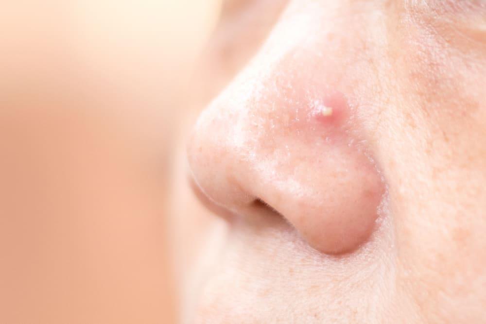 Jerawat Di Hidung Bikin Tak Percaya Diri Atasi Dengan Cara Cara Ini Yuk Good Doctor Tips Kesehatan Chat Dokter Beli Obat Online