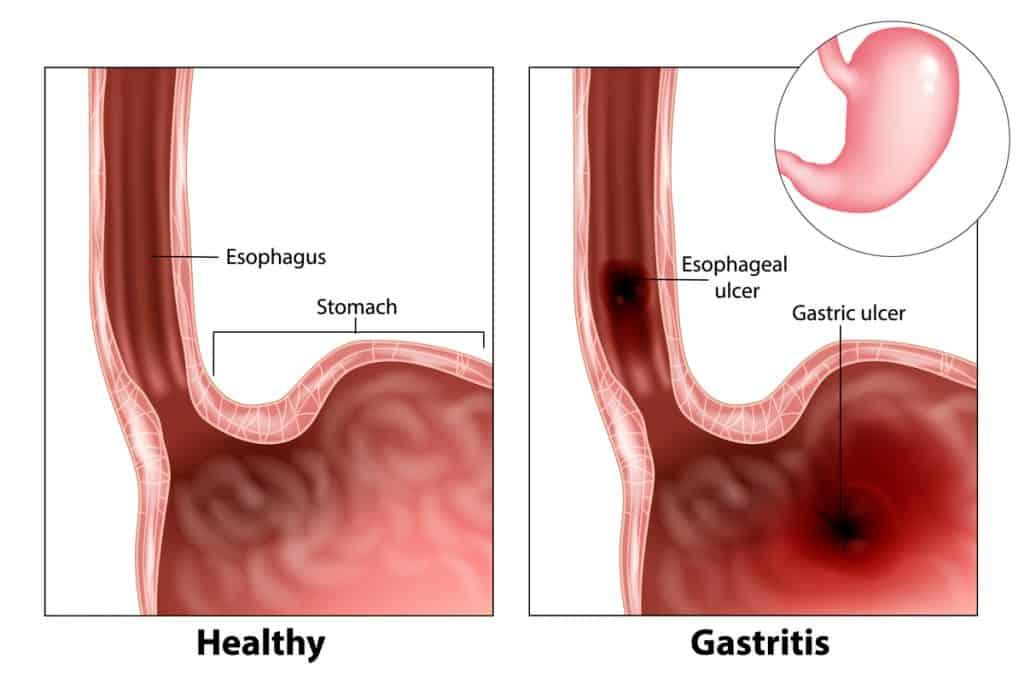 Penyakit dispepsia dan gastritis